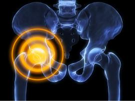 picture of X-ray pinpointing pain in hip