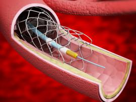 stroke stent endovascular mechanical thrombectomy